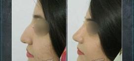 جراحی بینی در کرمان