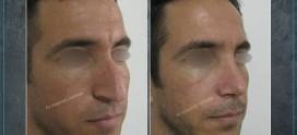 جراحی بینی در رفسنجان