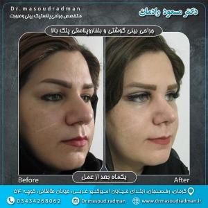 جراحی-پلک-در-کرمان-2