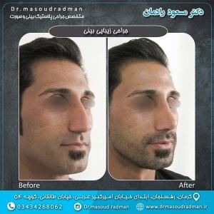 جراحی-بینی-در-کرمان-13