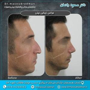جراحی-بینی-در-کرمان-14