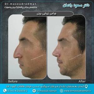 جراحی-بینی-در-کرمان-15