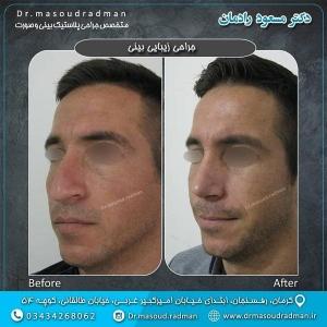 جراحی-بینی-در-کرمان-16