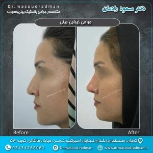 جراحی-بینی-در-کرمان-18