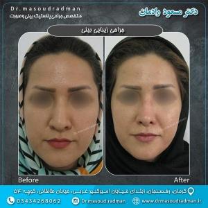 جراحی-بینی-در-کرمان-22