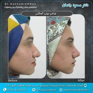 جراحی-بینی-در-کرمان-23