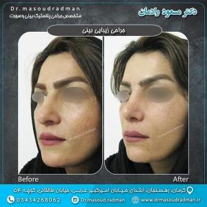 جراحی-بینی-در-کرمان-29