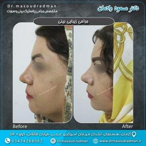 جراحی-بینی-در-کرمان-30