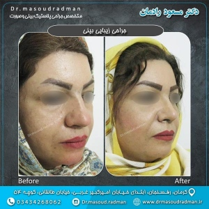 جراحی-بینی-در-کرمان-32