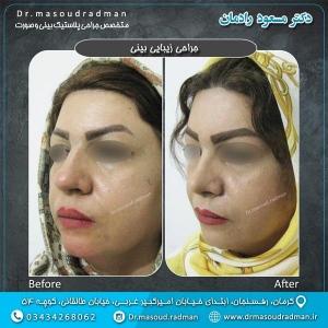 جراحی-بینی-در-کرمان-33
