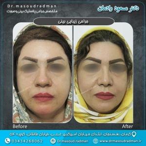 جراحی-بینی-در-کرمان-34