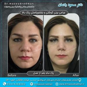 جراحی-بینی-در-کرمان-35