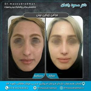 جراح بینی کرمان